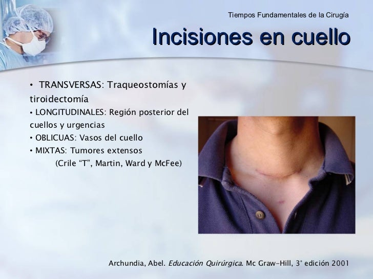 Archundia, Abel.  Educación Quirúrgica . Mc Graw-Hill, 3° edición 2001 <ul><li>TRANSVERSAS: Traqueostomías y tiroidectomía...