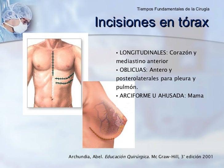 Incisiones en tórax <ul><li>LONGITUDINALES: Corazón y mediastino anterior </li></ul><ul><li>OBLICUAS: Antero y posterolate...