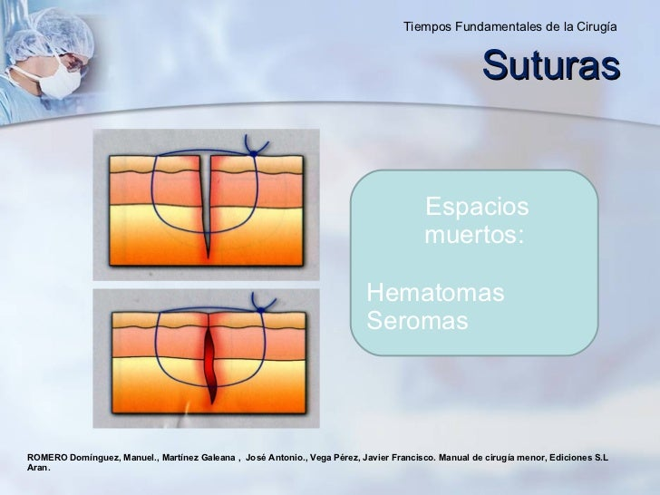 ROMERO Domínguez, Manuel., Martínez Galeana ,  José Antonio., Vega Pérez, Javier Francisco. Manual de cirugía menor, Edici...