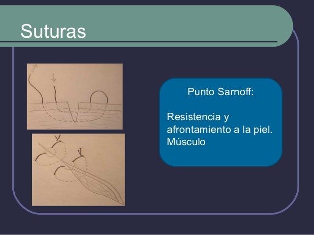 Suturas             Sutura continua              intradérmica:          Cirugía estética.
