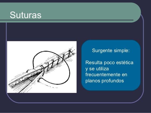 Hilos de Sutura (ORIGEN)  Naturales       Sinteticos    Animal          Poliamidas.       Catgut       Poliesteres. ...