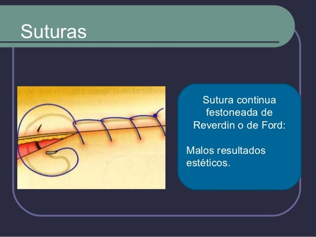 Hilos de Sutura (TIEMPO DEPERMANENCIA)  Reabsorbibles    Accion   enzimatica o hidrolisis      Catgut: 7 Dias.      Ca...