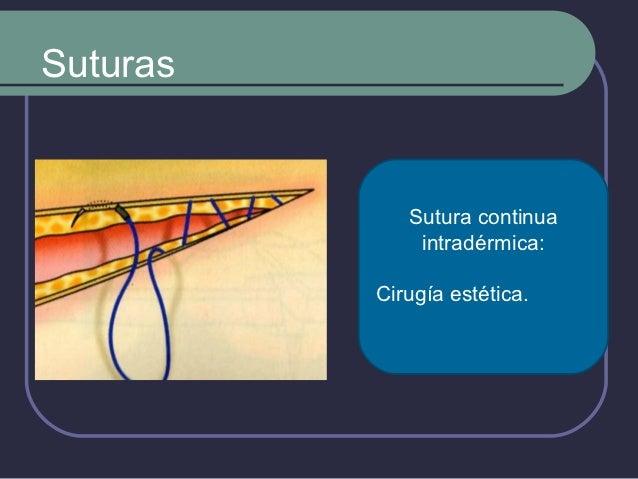 Hilos de Sutura (TIEMPO DEPERMANENCIA)        No   Absorbibles               Poliamidas.               Poliesteres.    ...