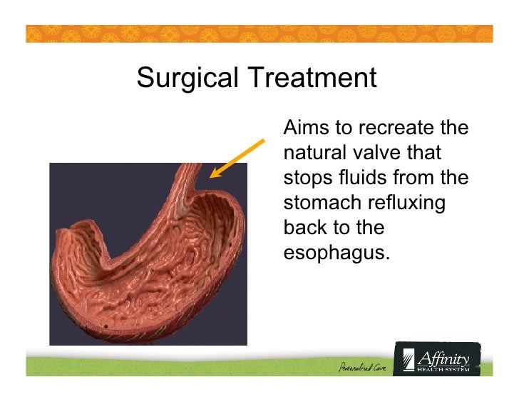 Heartburn and Acid Reflux: Causes & New Treatment Options