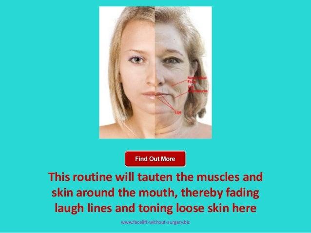 Chin jaw facial muscular toneing