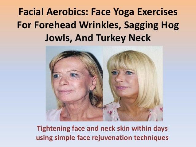 Facial Gymnastics Regimens: Natural Facelifts Could Be ...