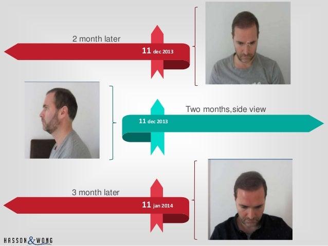Hair transplant surgery timeline