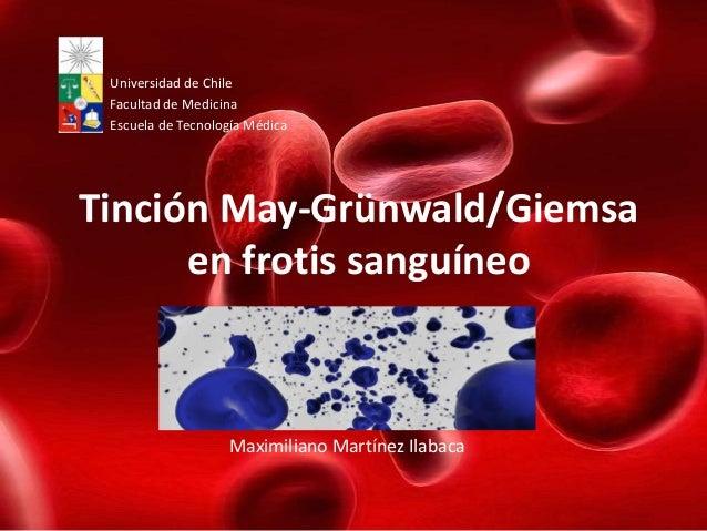 Universidad de Chile Facultad de Medicina Escuela de Tecnología MédicaTinción May-Grünwald/Giemsa      en frotis sanguíneo...
