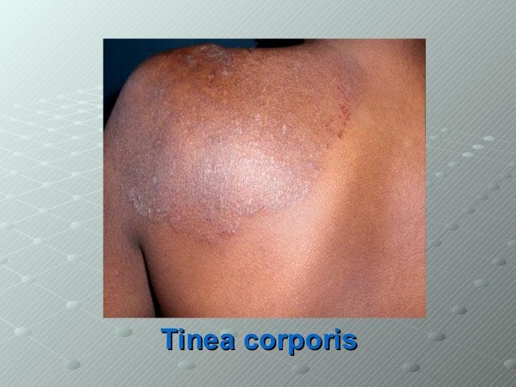 Tinea dermatophytes
