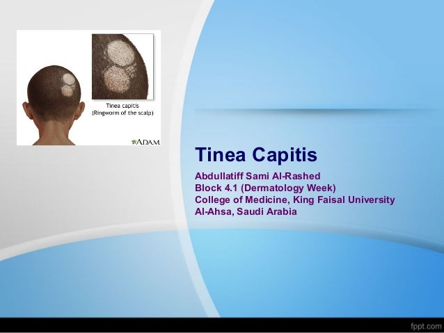 Tinea Capitis Abdullatiff Sami Al-Rashed Block 4.1 (Dermatology Week) College of Medicine, King Faisal University Al-Ahsa,...