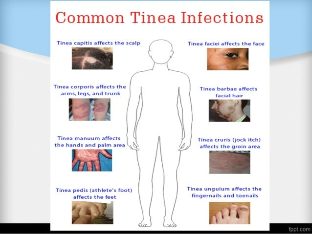 Definition • Tinea capitis is a fungal infection of the scalp that most often presents with pruritic, scaling areas of hai...