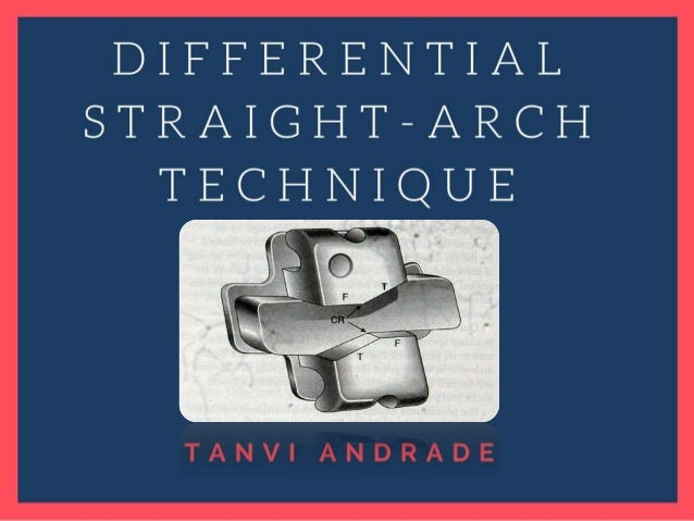 Contents • Introduction • Historical perspective • Creation of the Tip-edge bracket • Dynamics • Tip-edge Plus Bracket • D...