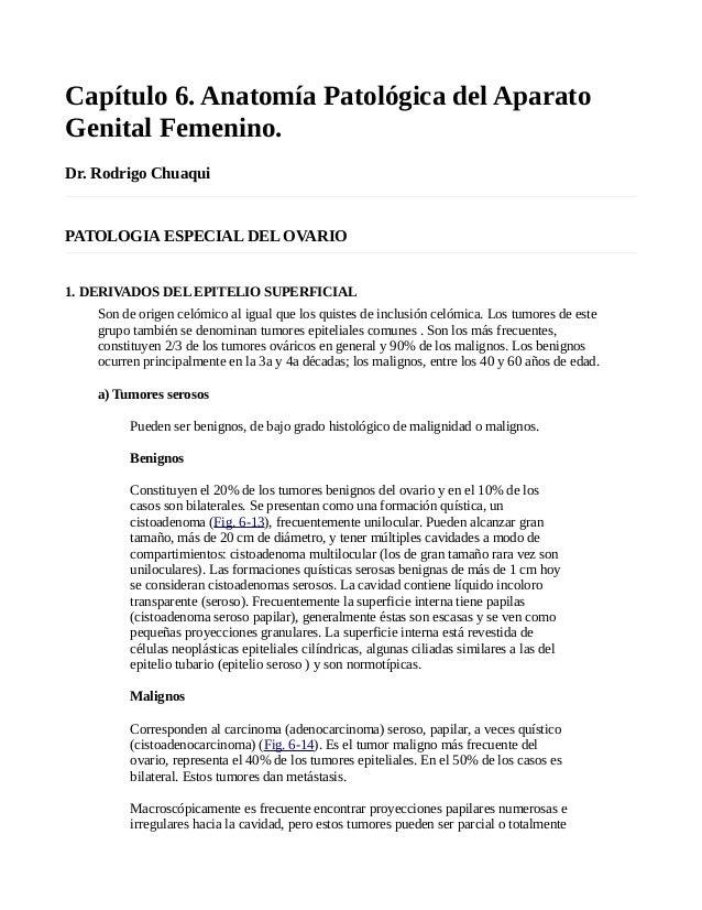 Capítulo 6. Anatomía Patológica del Aparato Genital Femenino. Dr. Rodrigo Chuaqui PATOLOGIA ESPECIAL DEL OVARIO 1. DERIVAD...