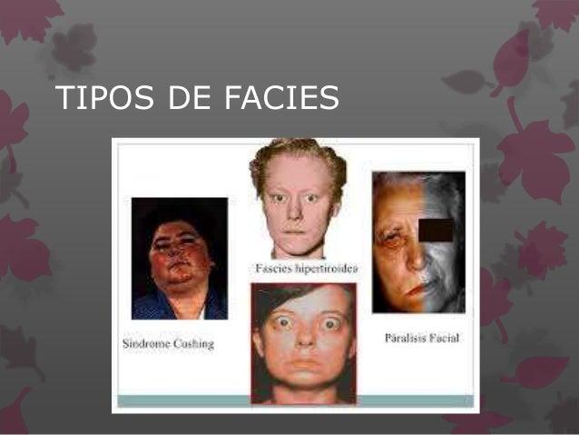 TIPOS DE FACIES