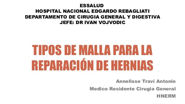 TIPOS DE MALLA PARA LA REPARACIÓN DE HERNIAS Annelisse Travi Antonio Medico Residente Cirugia General HNERM ESSALUD HOSPIT...