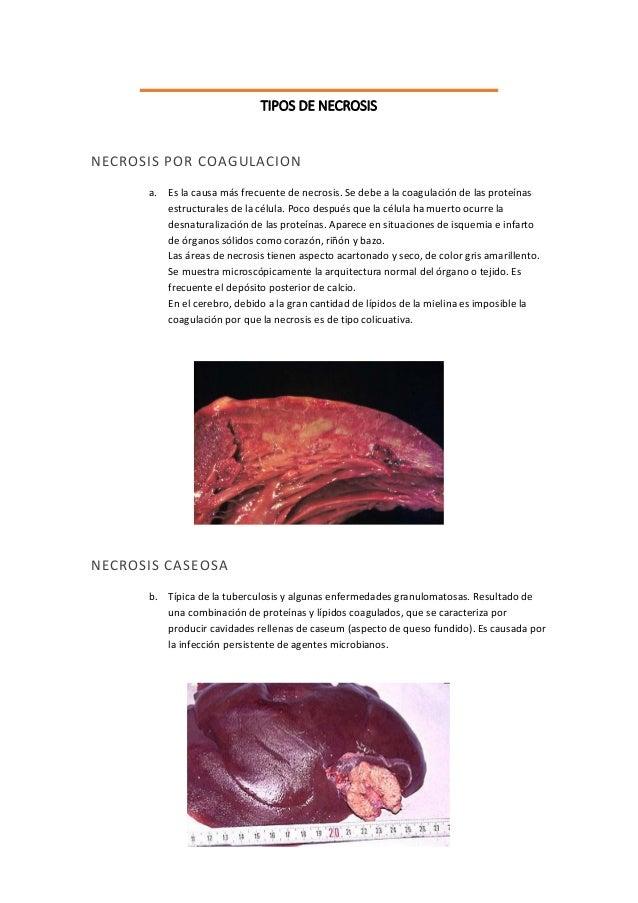 TIPOS DE NECROSIS  NECROSIS POR COAGULACION  a. Es la causa más frecuente de necrosis. Se debe a la coagulación de las pro...
