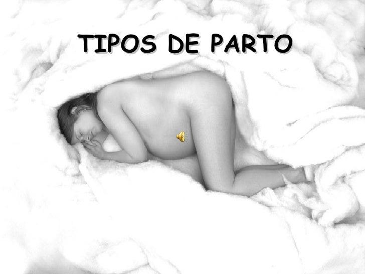 TIPOS DE PARTO
