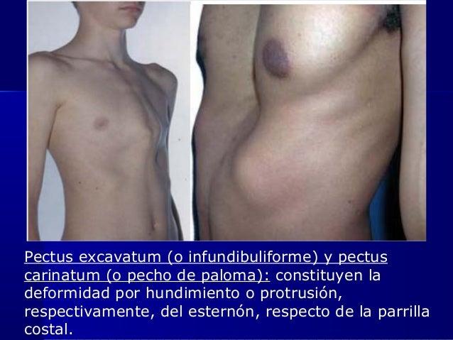 Pectus excavatum (o infundibuliforme) y pectus carinatum (o pecho de paloma): constituyen la deformidad por hundimiento o ...