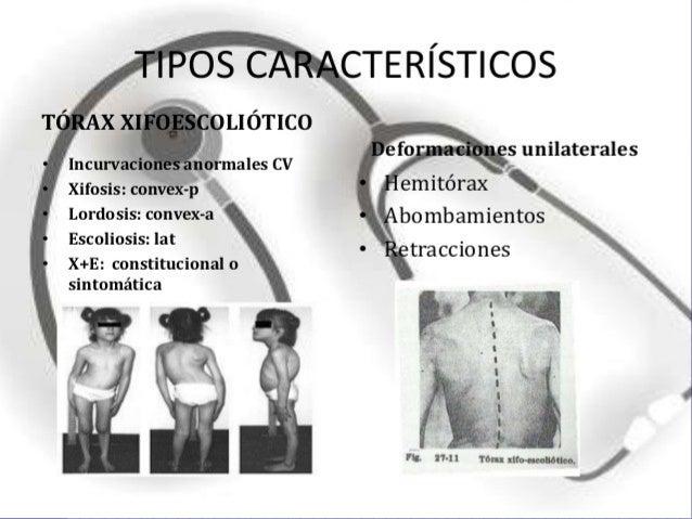 4. TORAX EN CARENA. Pectus carinatum 5. TORAX ENFISEMATOSO. 3. TORAX EN FALDA.