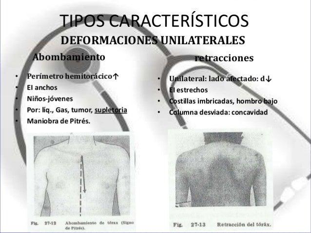  Tórax cifoescoliótico: La exageración de la curvatura a concavidad anterior en la columna dorsal (cifosis) habitualmente...