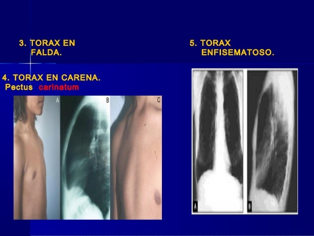 Tipos de tórax
