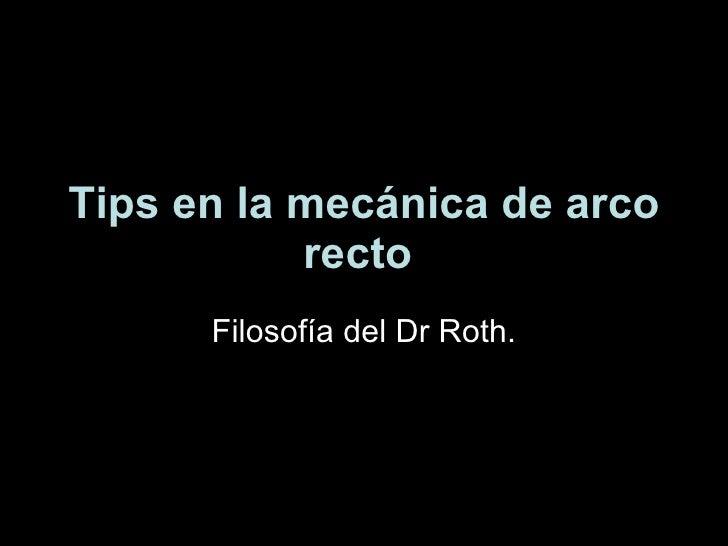 Tips en la mecánica de arco recto   Filosofía del Dr Roth.