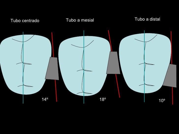14º 18º 10º Tubo centrado Tubo a mesial Tubo a distal