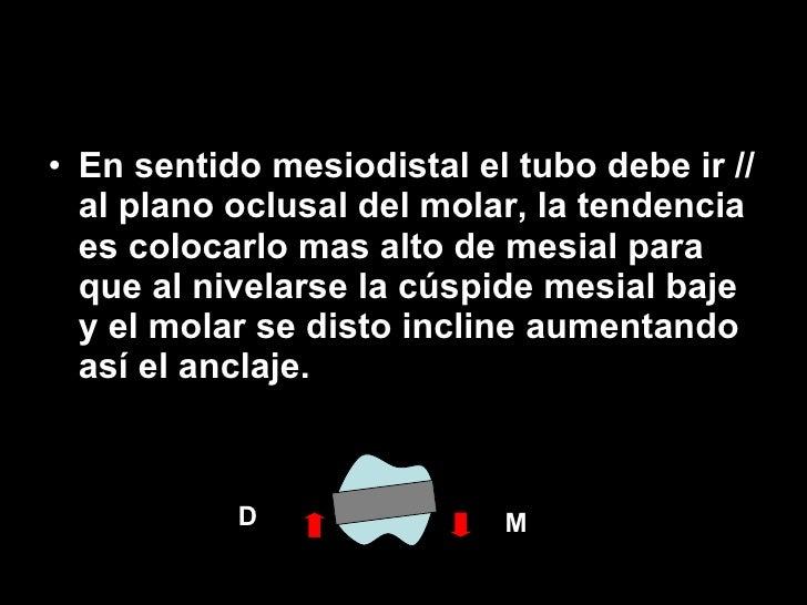 <ul><li>En sentido mesiodistal el tubo debe ir // al plano oclusal del molar, la tendencia es colocarlo mas alto de mesial...