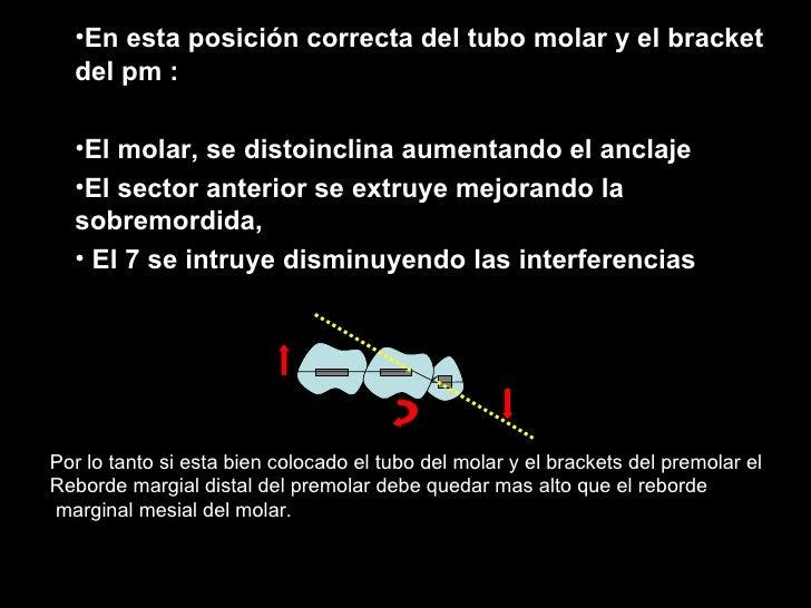 <ul><li>En esta posición correcta del tubo molar y el bracket del pm : </li></ul><ul><li>El molar, se distoinclina aumenta...