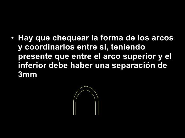 <ul><li>Hay que chequear la forma de los arcos y coordinarlos entre si, teniendo presente que entre el arco superior y el ...