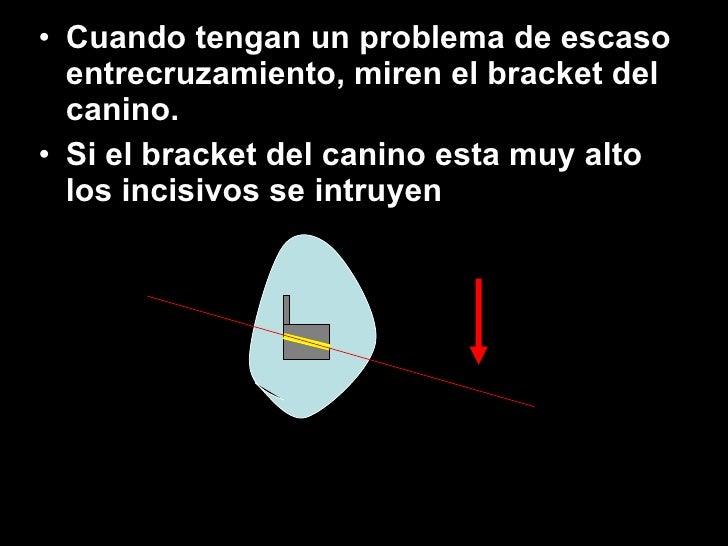 <ul><li>Cuando tengan un problema de escaso entrecruzamiento, miren el bracket del canino. </li></ul><ul><li>Si el bracket...