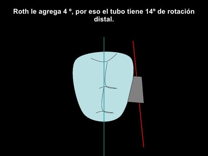 Roth le agrega 4 º, por eso el tubo tiene 14º de rotación distal.