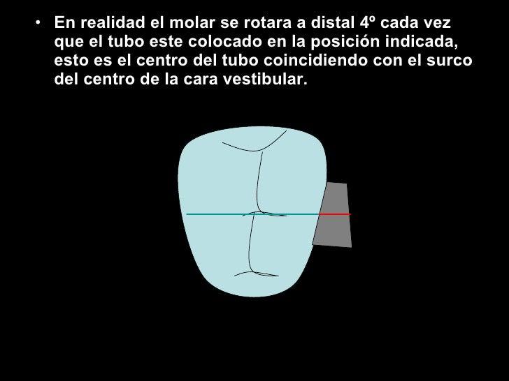 <ul><li>En realidad el molar se rotara a distal 4º cada vez que el tubo este colocado en la posición indicada, esto es el ...