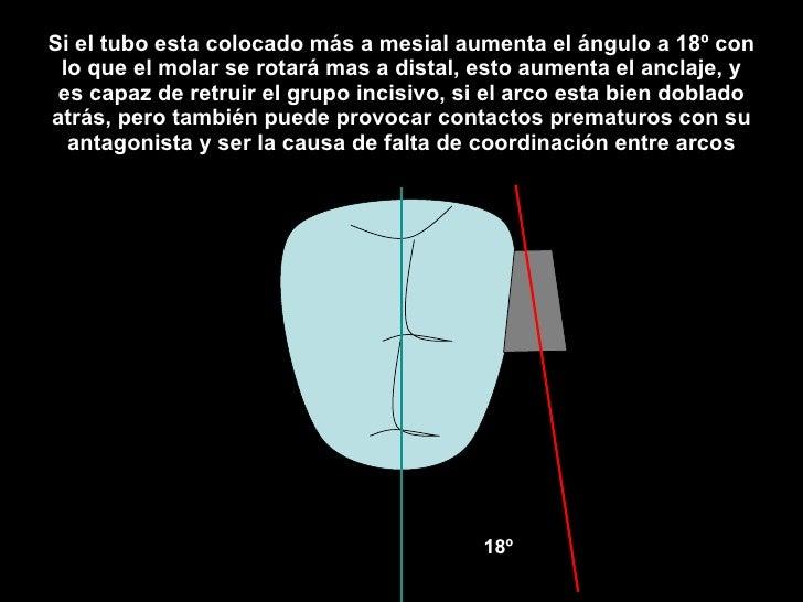 Si el tubo esta colocado más a mesial aumenta el ángulo a 18º con lo que el molar se rotará mas a distal, esto aumenta el ...