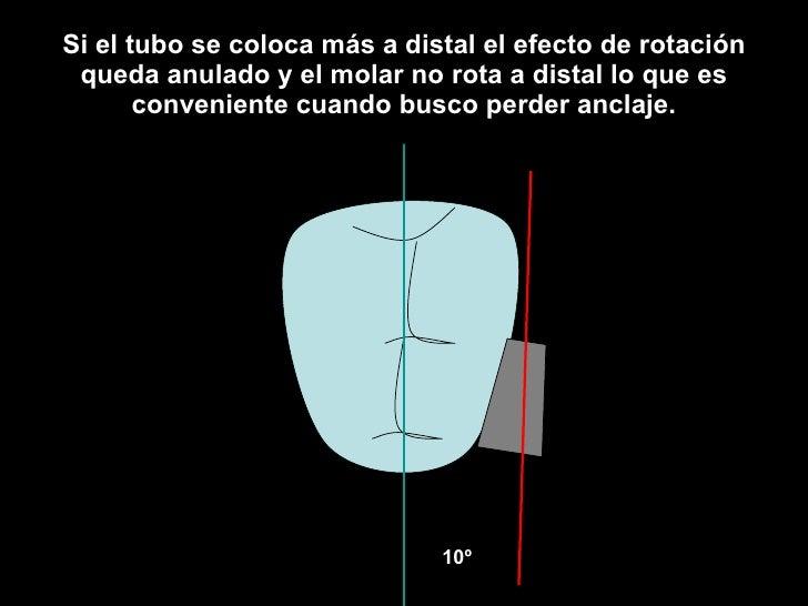 Si el tubo se coloca más a distal el efecto de rotación queda anulado y el molar no rota a distal lo que es conveniente cu...