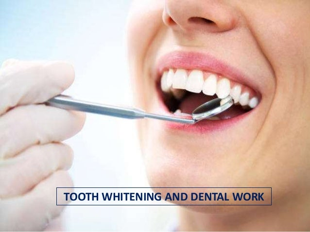 TOOTH WHITENING AND DENTAL WORK