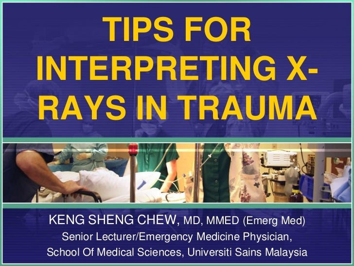 TIPS FORINTERPRETING X-RAYS IN TRAUMAKENG SHENG CHEW, MD, MMED (Emerg Med)  Senior Lecturer/Emergency Medicine Physician,S...