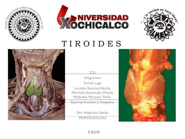 T I R O I D E S 2°D Integrantes: Yomali Lugo Lumbán Ramírez Fabiola Martínez Hernández Wendy Meléndez Márquez Thalía Ramír...