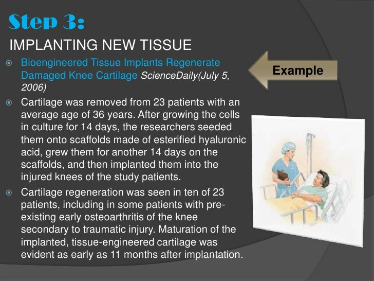 Step 3:IMPLANTING NEW TISSUE   Bioengineered Tissue Implants Regenerate    Damaged Knee Cartilage ScienceDaily(July 5,   ...