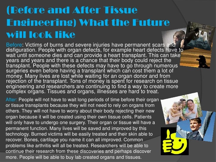 (Before and After TissueEngineering) What the Futurewill look likeBefore: Victims of burns and severe injuries have perman...