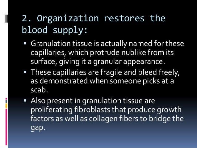 tissue repair Tissue repair, regeneration and wound healing (1) 1 tissue repair, regeneration and wound healing 2 tissue repair • repair, sometimes.