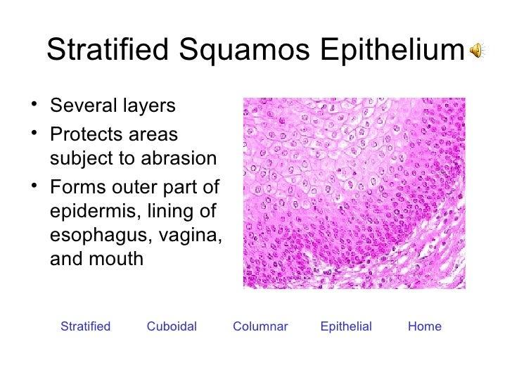 Stratified Squamos Epithelium <ul><li>Several layers </li></ul><ul><li>Protects areas subject to abrasion </li></ul><ul><l...