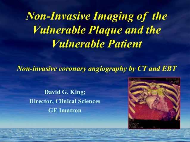 Non-Invasive Imaging of the Vulnerable Plaque and the Vulnerable Patient Non-invasive coronary angiography by CT and EBT D...