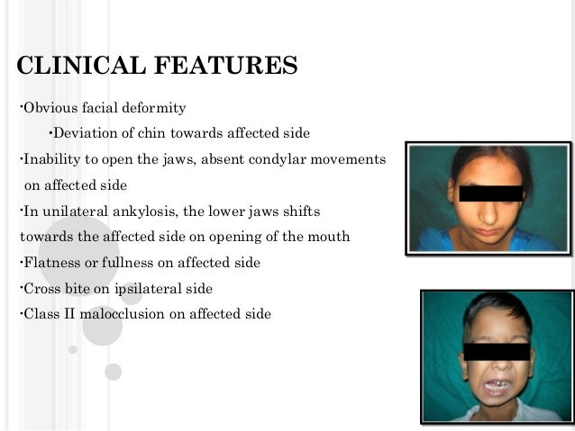 CLINICAL FEATURES •Obvious  facial deformity  •Deviation •Inability  of chin towards affected side  to open the jaws, abse...