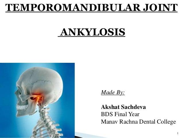 ankylosis of tmj oral surgery