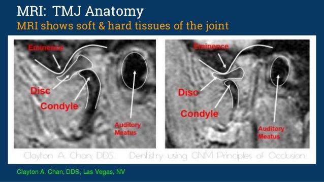 tmj anatomy mri radiology