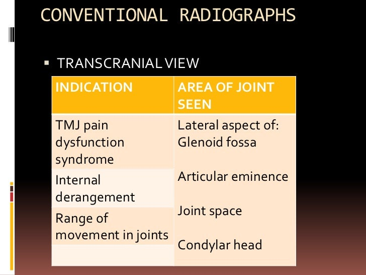  Film position: flat against patients ear Centered over TM joint of interest Against facial skin parallel to sagittal p...