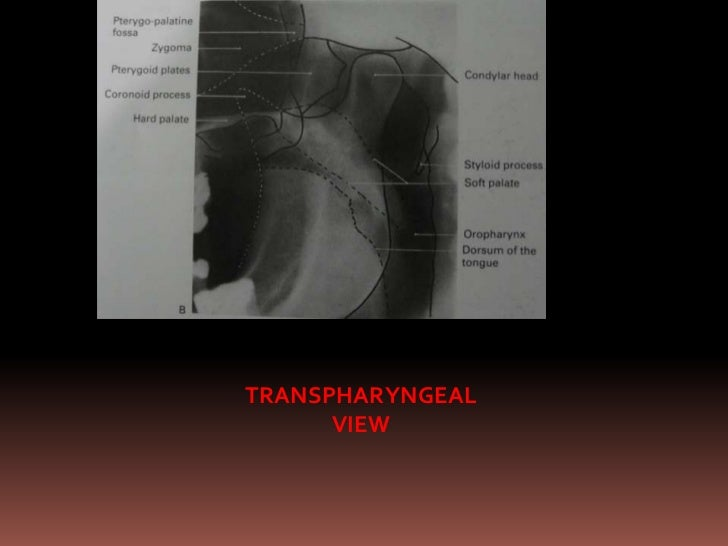  Film position-behind patients head at an  angle of 45 degree to sagittal pane Position of patient--sagittal pane vertic...