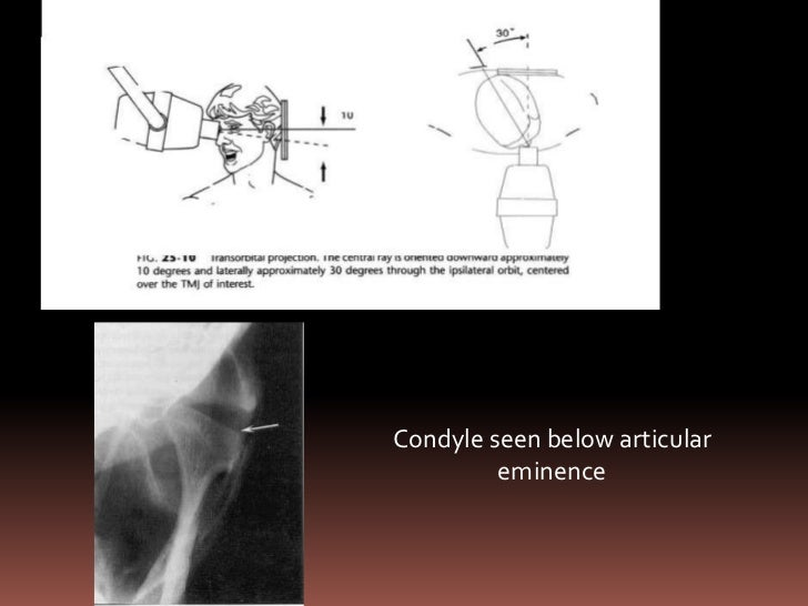 Forehead –nose   position  Appreciation of  condyle on left       side      REVERSE    TOWNE'S (Eric      Whaites)