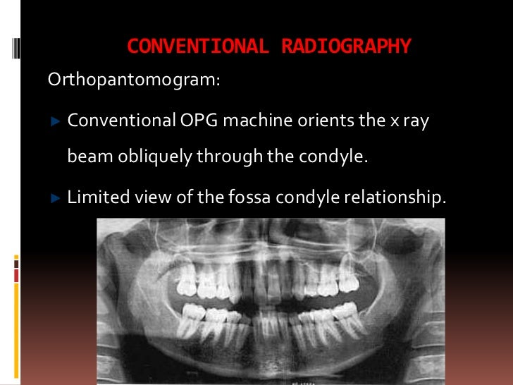 Tmj Imaging. Wiring. Mouth Diagram Labeled Radiograph At Scoala.co